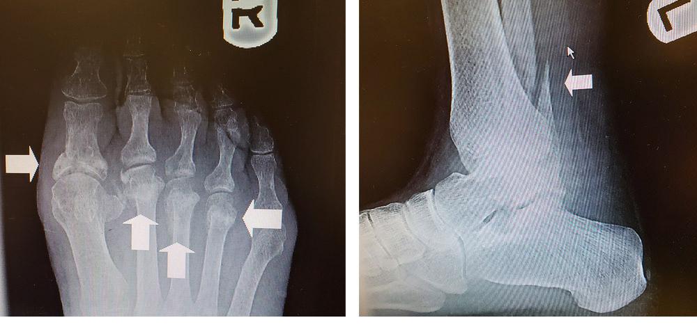 sprained foot injury